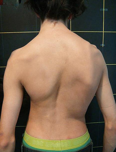 La espalda de una niña con escoliosis.
