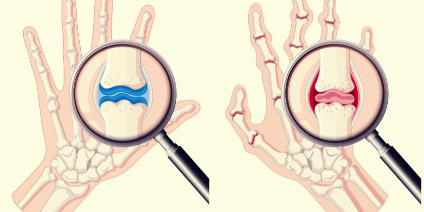 Manos en artritis reumatoide
