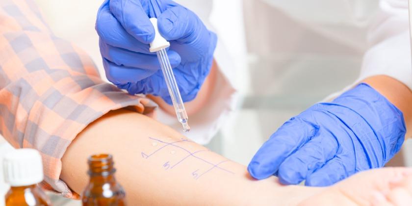Prueba de diagnóstico de alergia al polen o prueba de punción