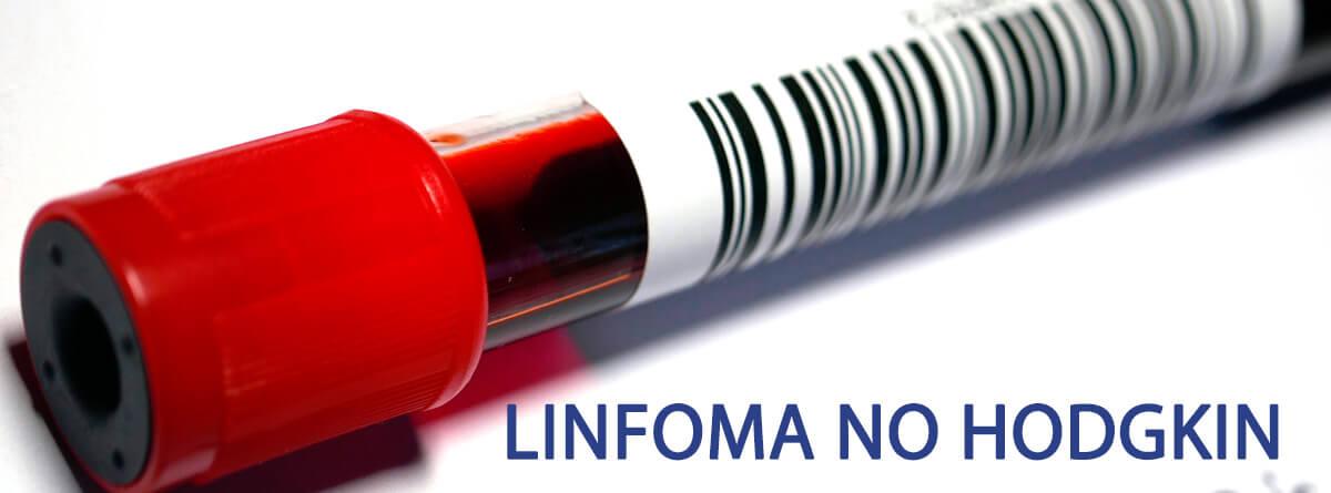 Síntomas B asociados a linfomas: muestra de sangre